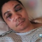 "Vhong Navarro to File ""Felony Graver"" than Frustrated Murder to Denise Millet Cornejo & Cedric Lee's Camp"