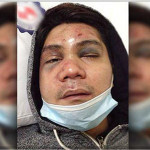 Vhong Navarro's Medical Update After Tied Up, Beaten and Bruise