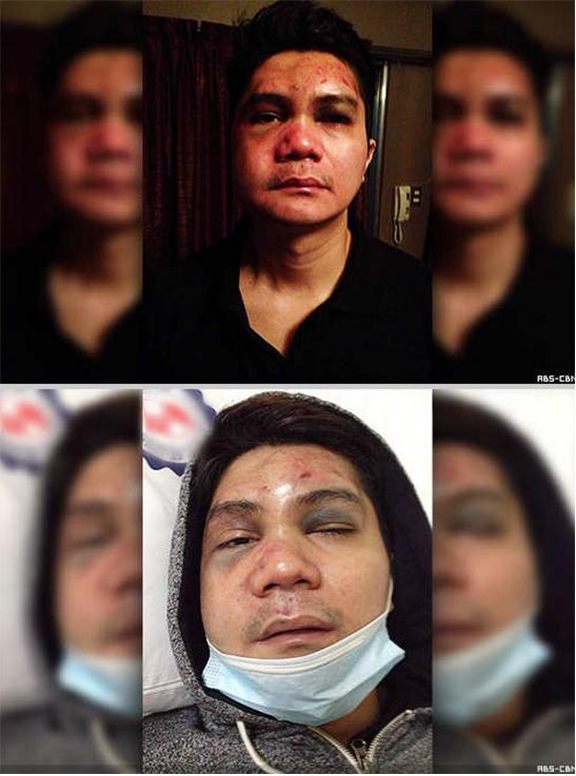 Vhong Navarro Beaten Vhong-navarro-beaten-up-photos