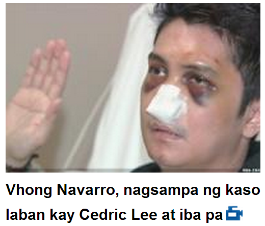 Vhong Navarro 39 S Affidavit Filed To The Nbi Attracttour