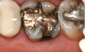 Mercury used as Dental Amalgan can cause Disease