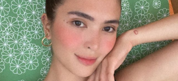 Sofia Andres Has This Skin Condition That Makes Her Feet Looks, Black