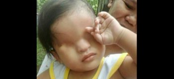 KMJS Features 1-year-old Jhon Dave born without eyes (Full Video)